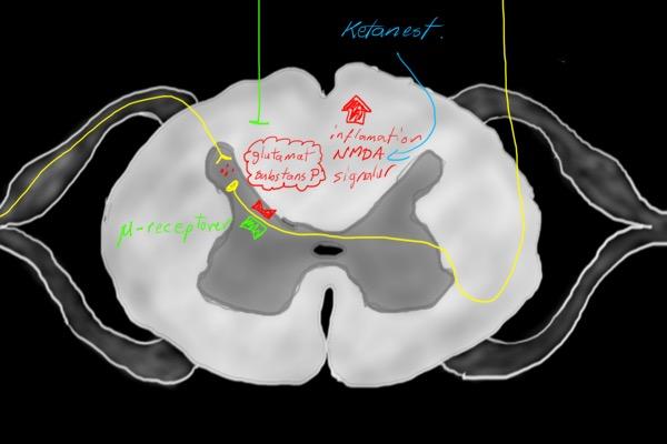 Anestesins grunder